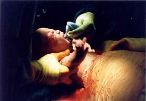 Cesarean Birth by Carol Gray